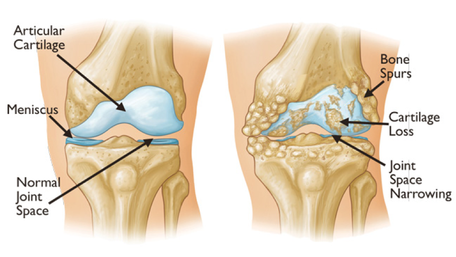 Osteoarthritis Infographic compared to healthy knee